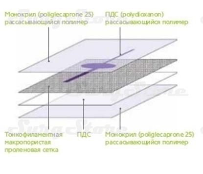 Image de PHY715R PHYSIOMESH Сетка ФИЗИОМЕШ прямоугольная форма 7х15 см