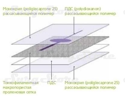 Image de PHY1015V PHYSIOMESH Сетка ФИЗИОМЕШ овальная форма 10х15 см