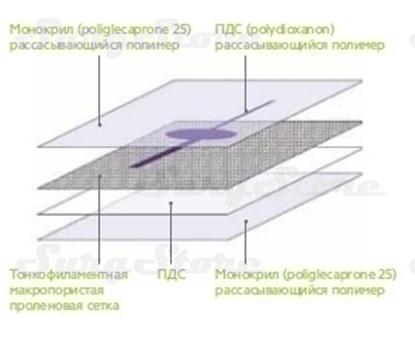 Image de PHY2025V PHYSIOMESH Сетка ФИЗИОМЕШ овальная форма 20х25 см