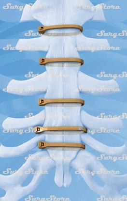 Изображение 0850100120S Фиксатор для грудины ZipFix с иглой PEEK